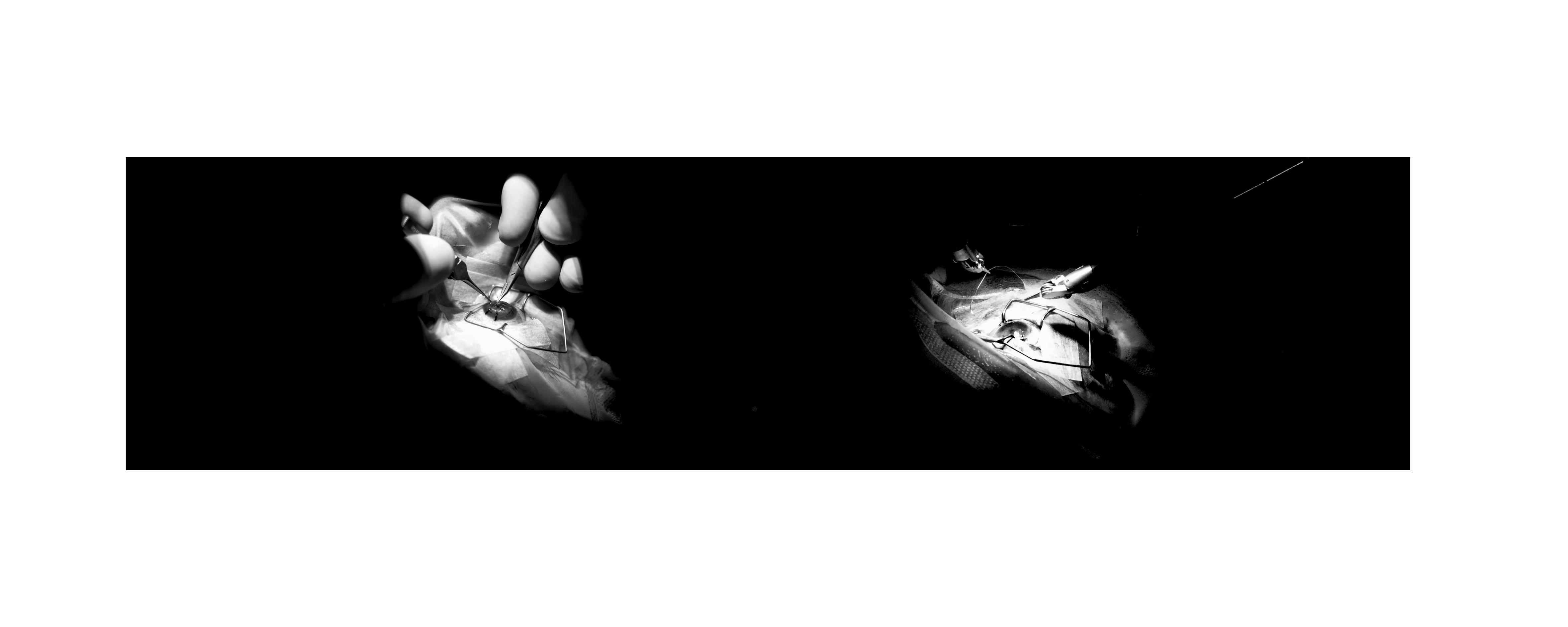 micro-chirugie ophtamologie