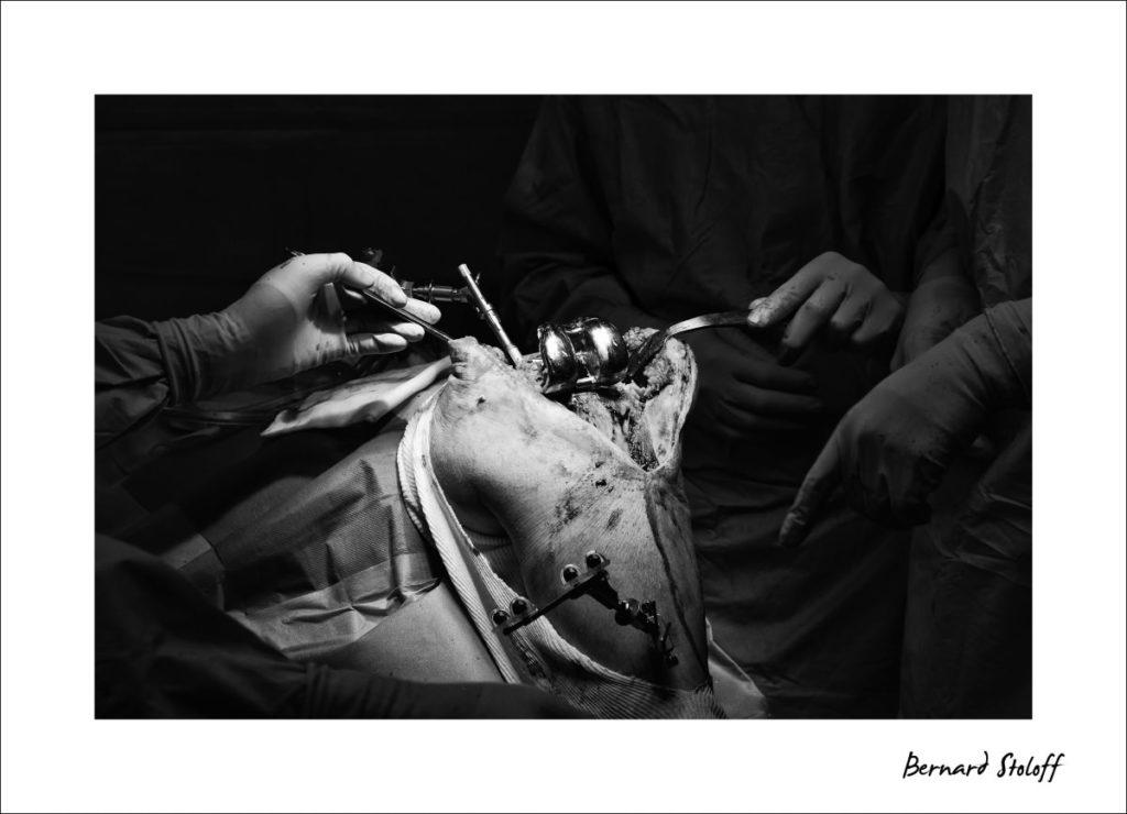 changement-prothèse-infectée-1